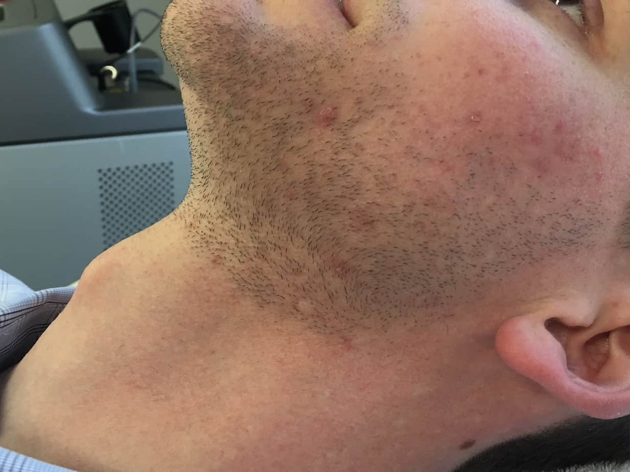 close up of man's neck after laser hair removal with no hair or blemishes