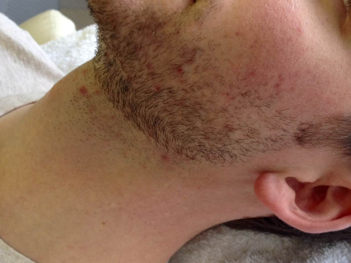 close up of man's neck with stubble and irritation before laser hair removal