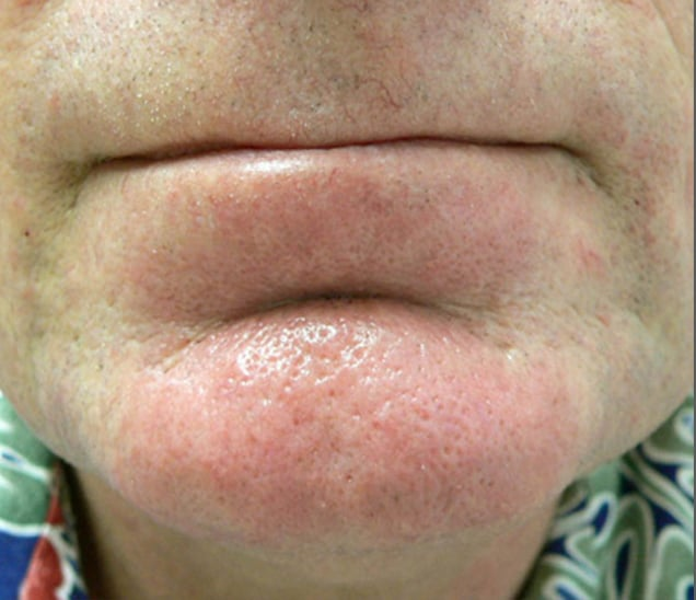 man's chin after IPL for broken capillaries
