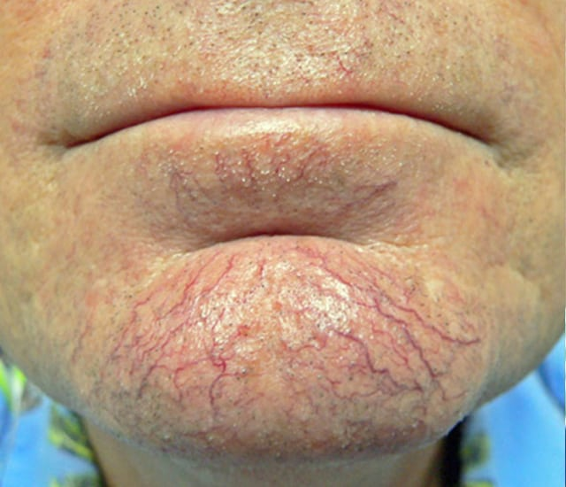 man's chin with spider veins before IPL treatment