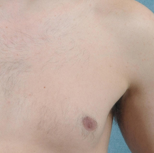 close up of man's chest after laser hair removal in McLean VA
