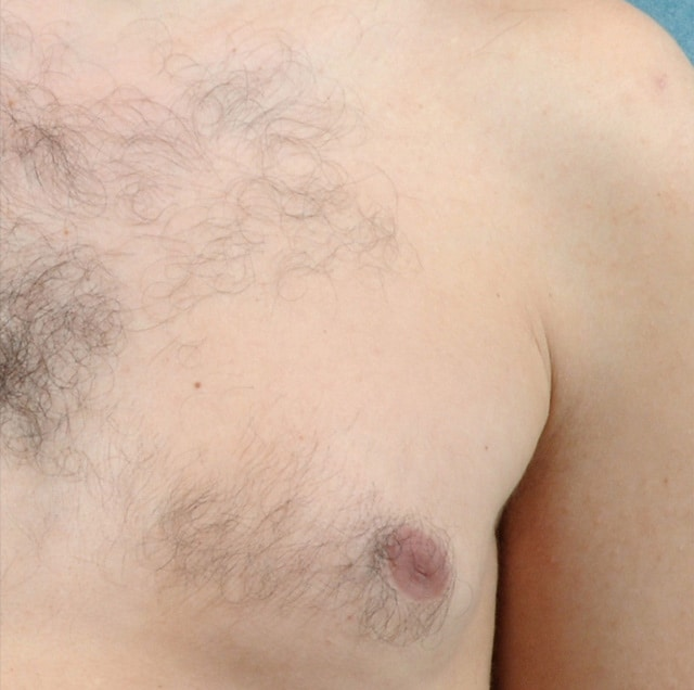 close up of man's chest with hair before laser hair removal