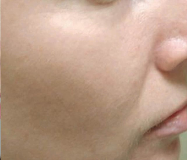 close up of cheek with no freckles after photofacial in McLean VA