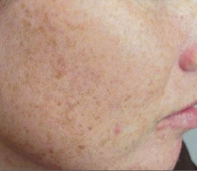 close up of cheek with freckles before photofacial