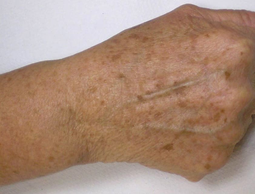 hand with age spots before IPL treatment