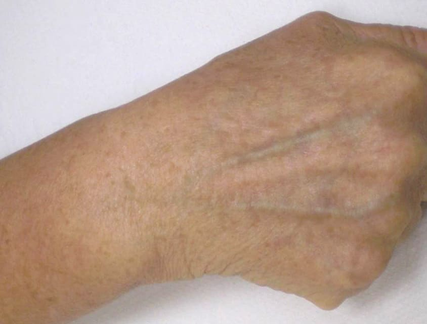 hand with no age spots following IPL treatment