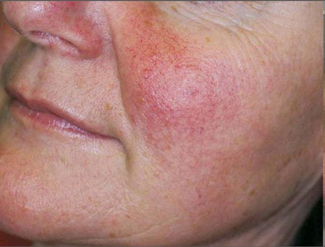close up of woman's cheek showing rosacea before IPL in Northern VA