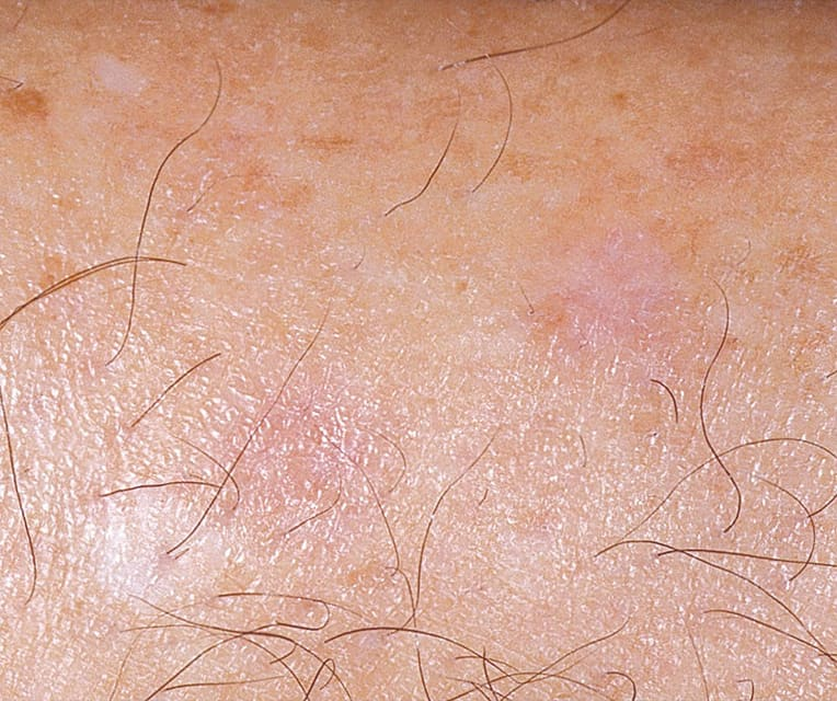 close up of skin after freckle removal
