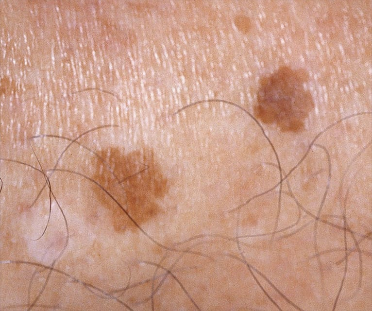 close up of skin with age spots