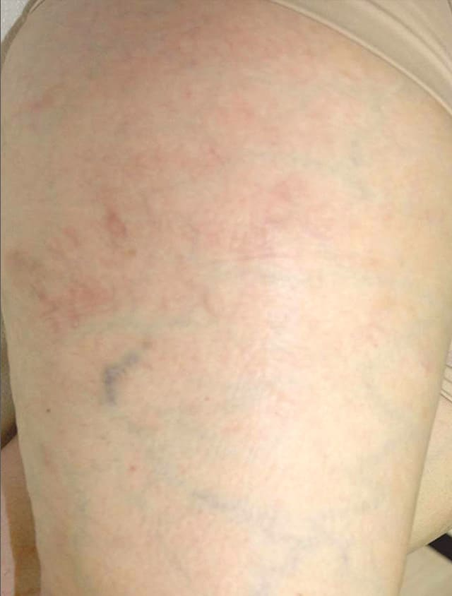 close up of thigh after spider vein laser treatment