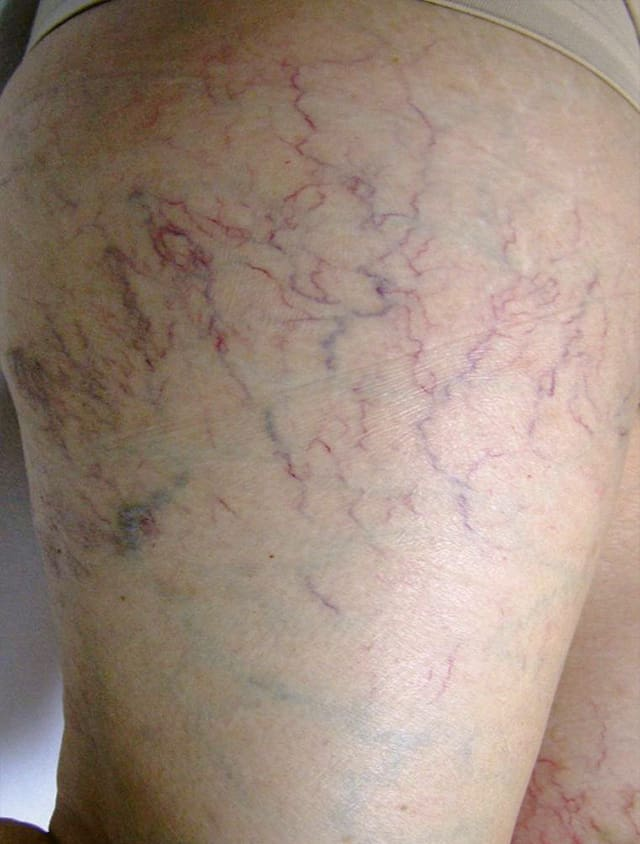 thigh with spider veins before laser treatment