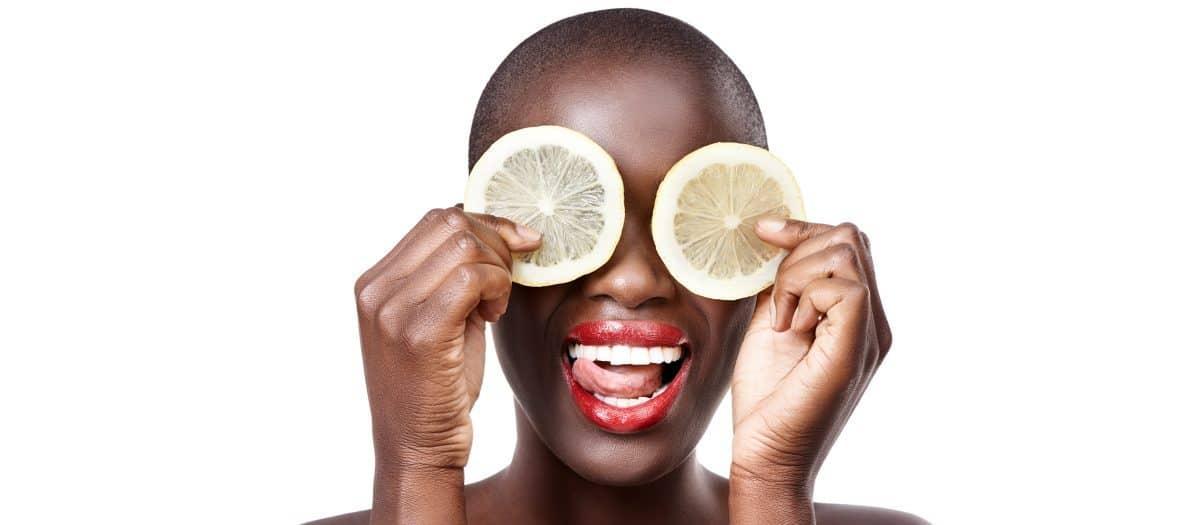 model holding lemons to her face demonstrating chemical peel treatments