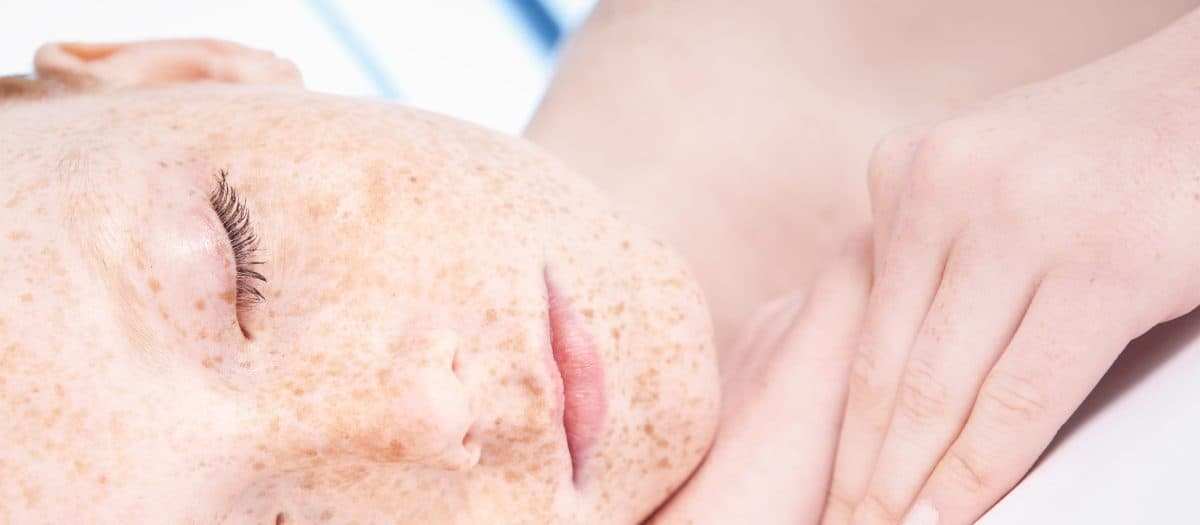 woman's freckled face for IPL treatment